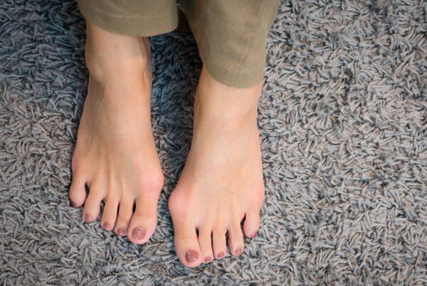 Deux pieds nus vus du dessus avec hallux valgus ou oignon