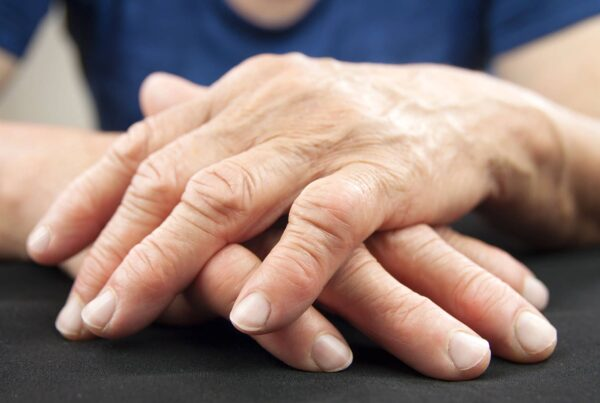 Mains de femme âgée avec polyarthrite rhumatoïde